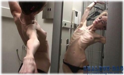 Фото самых худых голых девушек