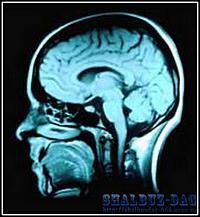 Ученые нашли связь между шизофренией и эпилепсией