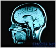 Ученые расшифровали «внутренний голос» мозга